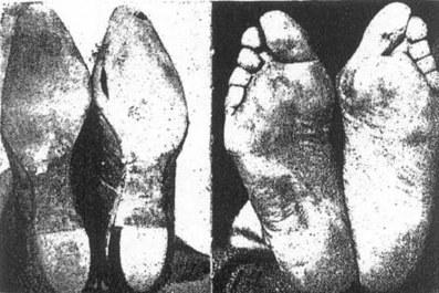 Nezdravé nohy