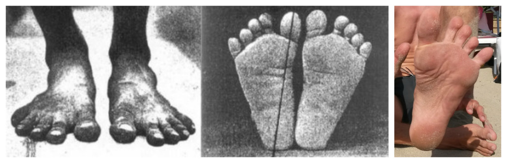 nohy přirozeně